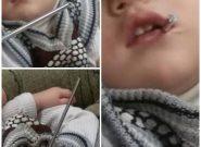 بازیگوشی پسر بچه ۲ ساله مرندی و فرو رفتن میله آهنی در گلویش